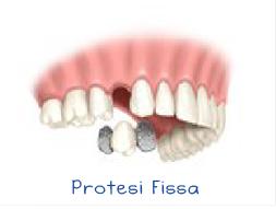 protesiFissa