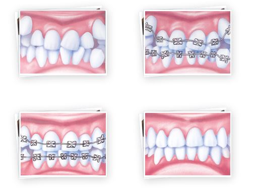 ortodonzia busto arsizio